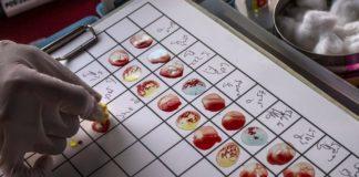τεστ αίματος